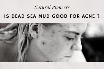 Thumbnail Natural Pioneers Is Dead Sea Mud Good For Acne